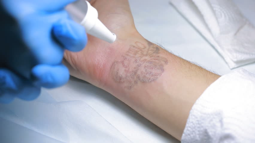 Laser treatment breaks apart ink particles so they are easier for your immune system's cells to break down.
